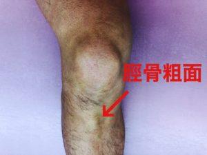 脛骨粗面の写真